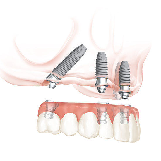 All-on-4 Zahnimplantate: Zahnärzte am Stadtpark