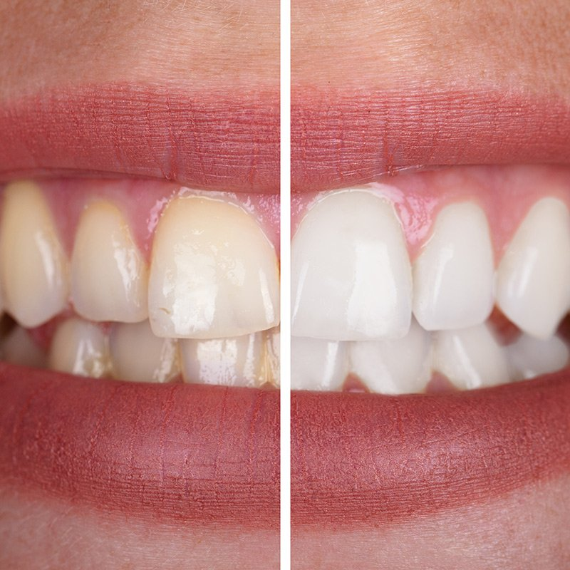 Bleaching beim Zahnarzt: Zahnärzte am Stadtpark, Wien