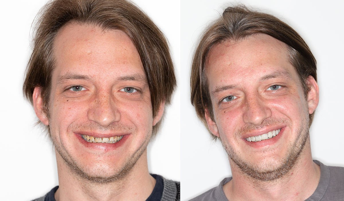 Smile Makeover: Zahnärzte am Stadtpark