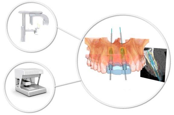 DVT 3D-Röntgen: Zahnärzte am Stadtpark
