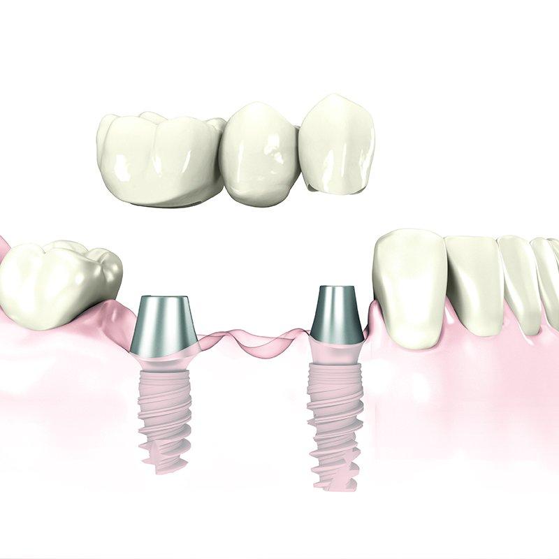 Implantatgetragener Zahnersatz: Brücke auf zwei Implantaten