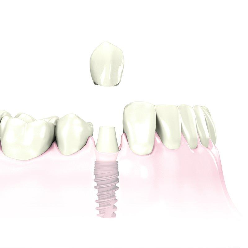 Implantatgetragener Zahnersatz: Zahnärzte am Stadtpark, Wien