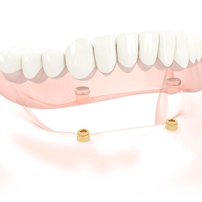 Implantatgetragener Zahnersatz: Zahnärzte am Stadtpark Wien