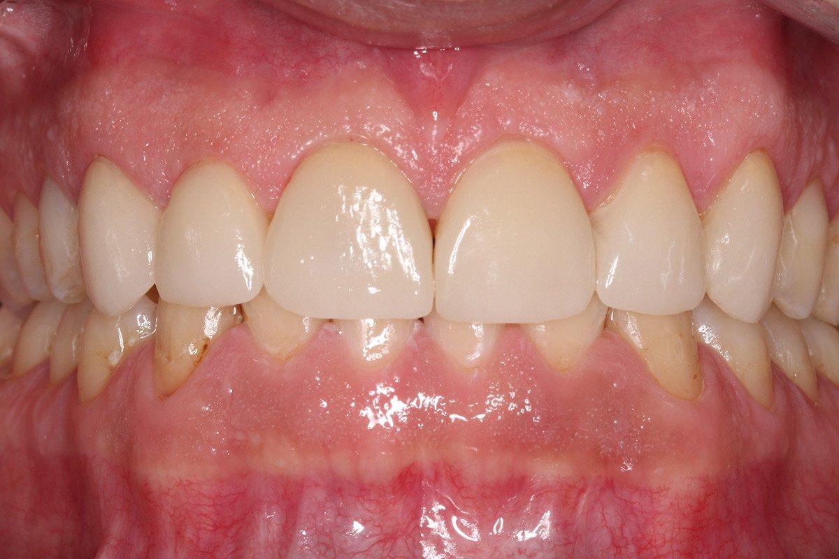 Beispiel Veneers: Zahnärzte am Stadtpark