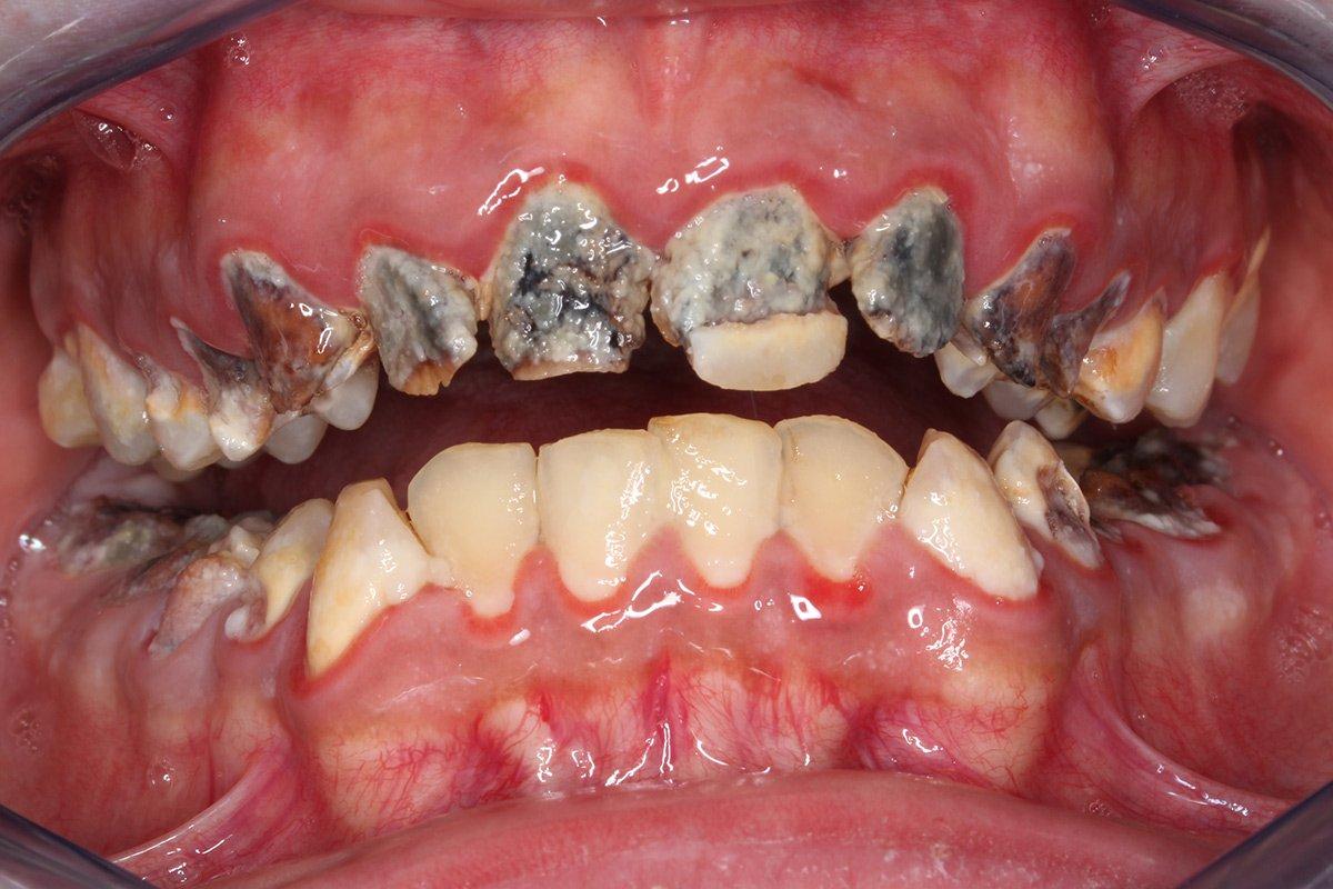 Beispiel Kronen Vollkeramik: Zahnärzte am Stadtpark