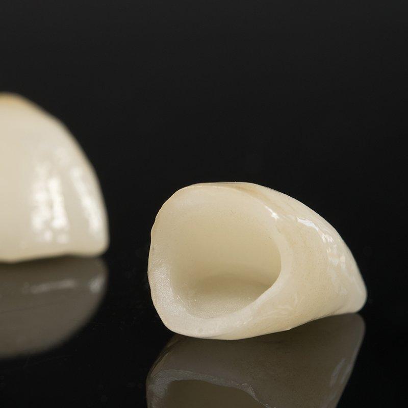 Reinkeramische Zahnkrone: Zahnärzte am Stadtpark, Wien