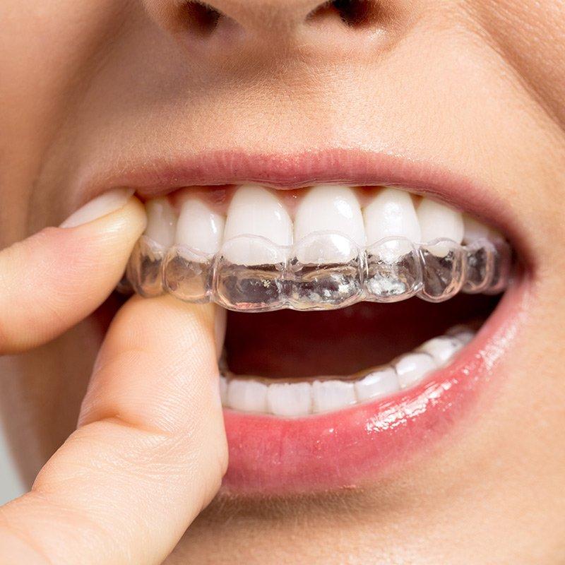 Invisalign - unsichtbare Zahnspange: Zahnärzte am Stadtpark