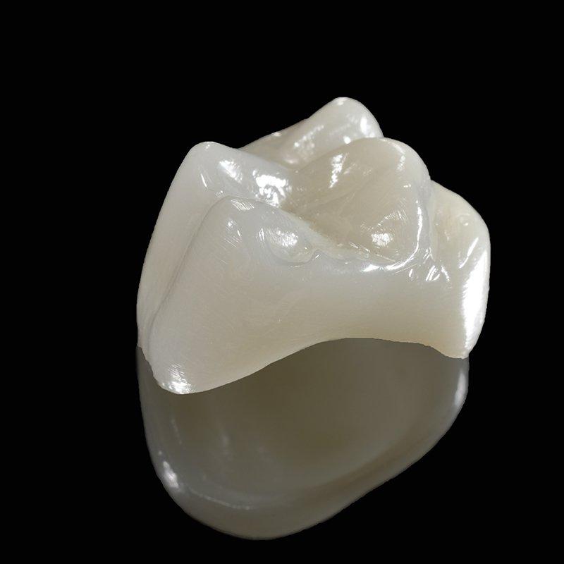 Zahnkronen: Zahnärzte am Stadtpark, WIen