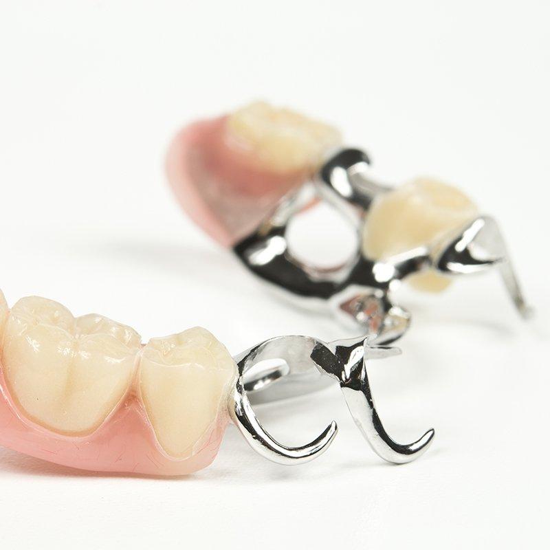 Zahnprothese mit Klammer: Zahnärzte am Stadtpark