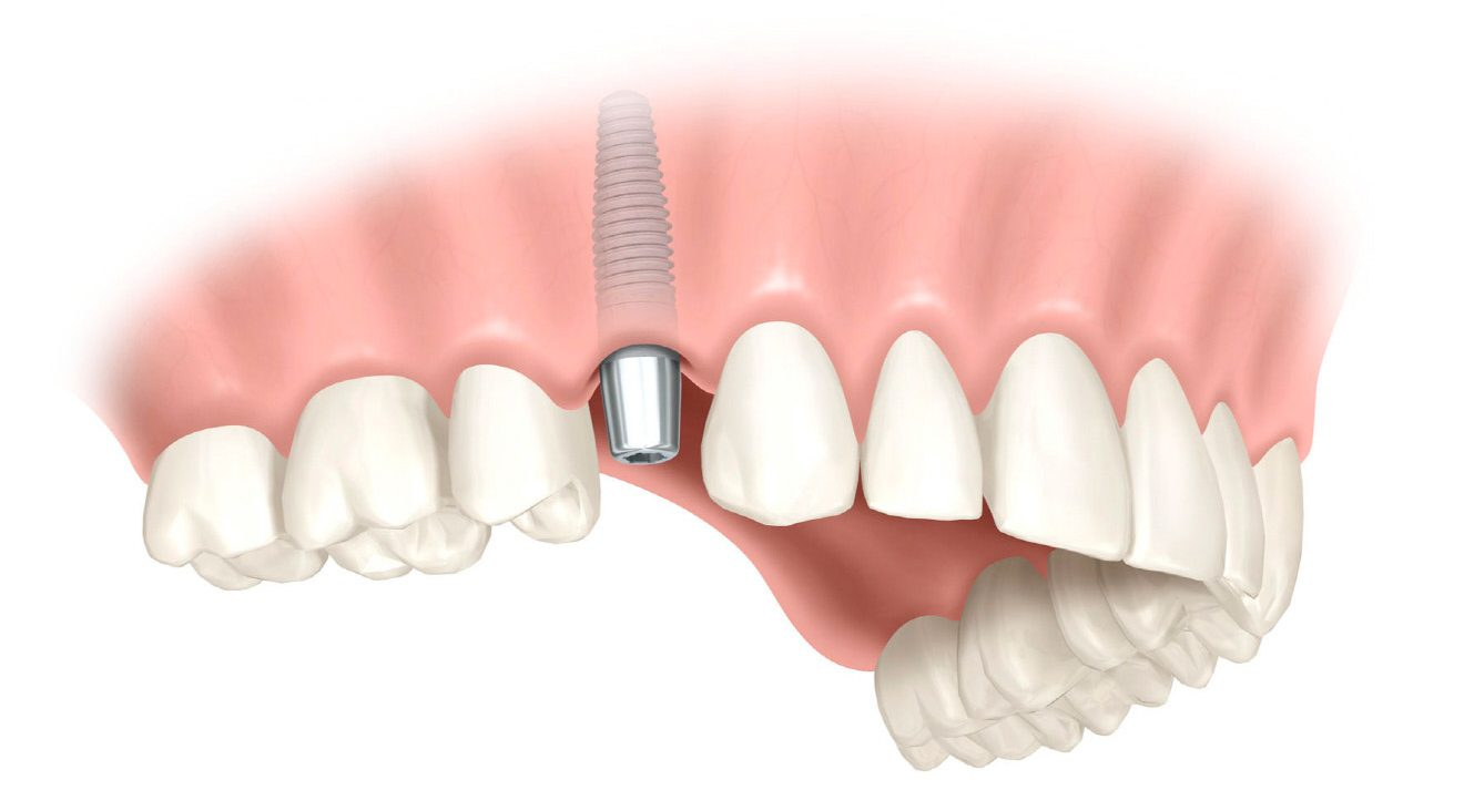 Implantat - Zahnimplantat - Wien - Zahnärzte Am Stadtpark