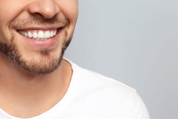 Zahnkronen – Wien – Wählen Sie für sich das Beste - Zahnärzte Am Stadtpark