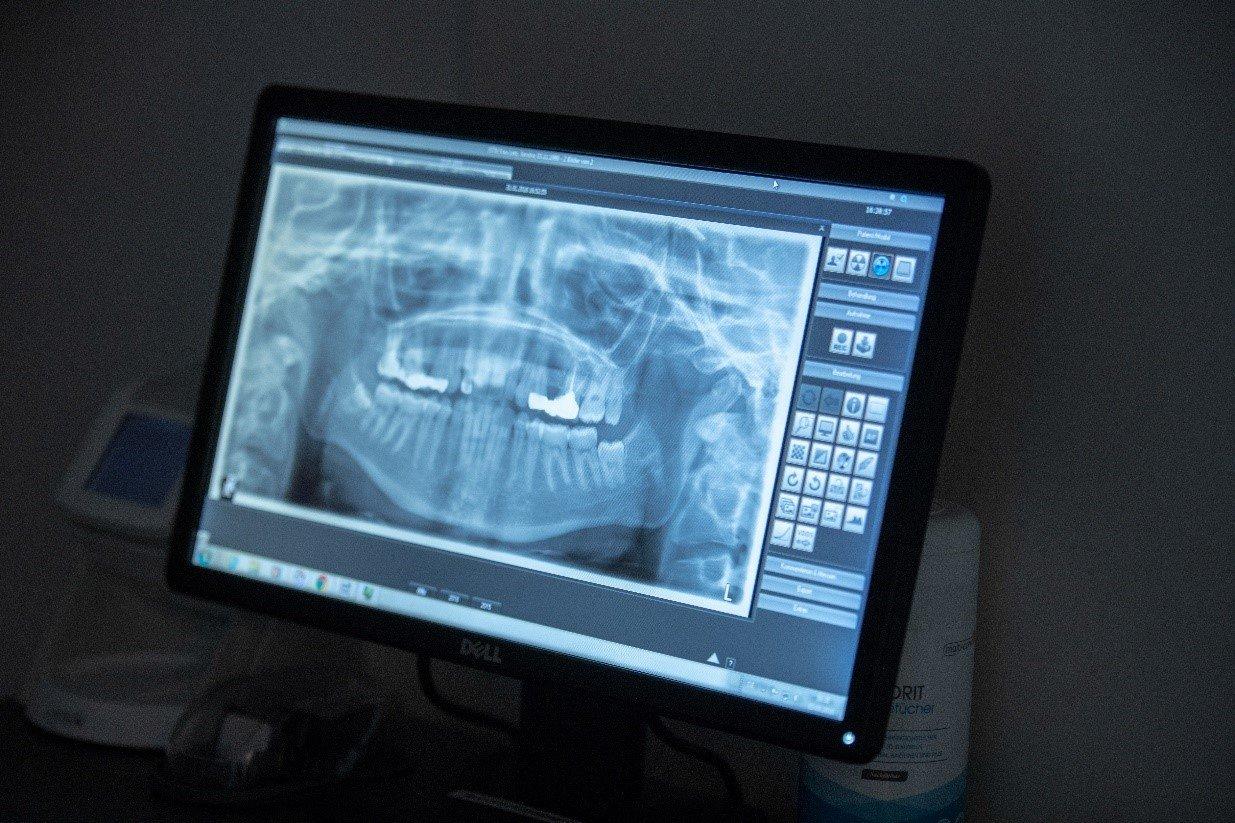 3D-CBCT-Aufnahmen von Zähne - Das Beste wählen - Zahnärzte Am Stadtpark