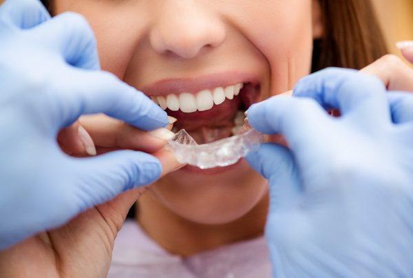 INVISALIGN - Wien – Wählen Sie das Beste für sich - Zahnärzte Am Stadtpark