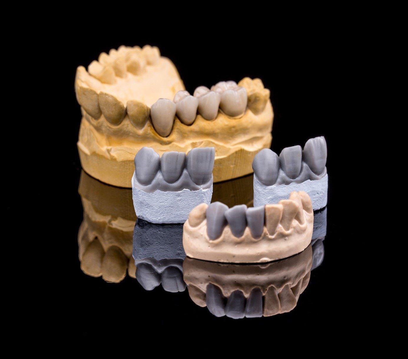 Zahnbrücken - Wien – Wählen Sie das Beste für sich - Zahnärzte Am Stadtpark